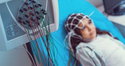 Neuropädiatrie beim Kinderarzt